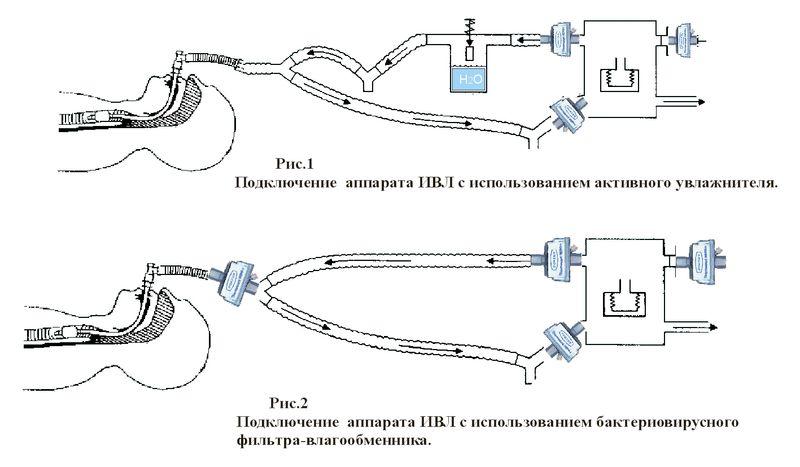 Схема подключения аппарата ИВЛ